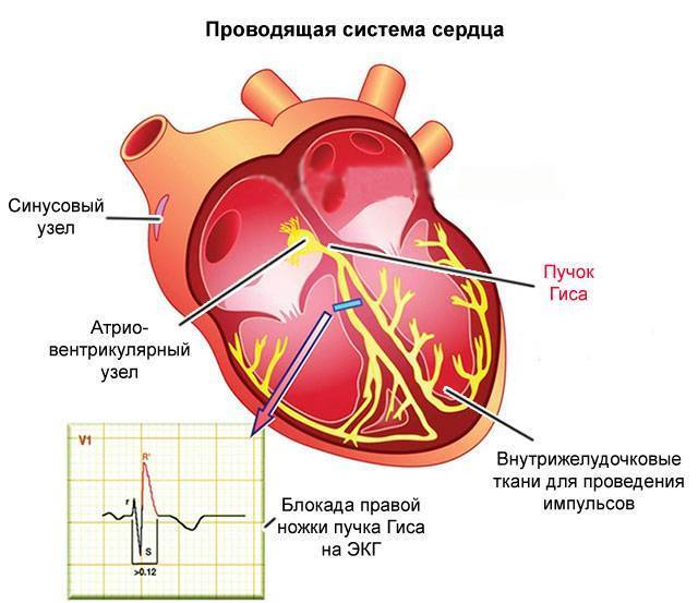 Нарушение внутрижелудочковой проводимости сердца: что это такое, виды, лечение