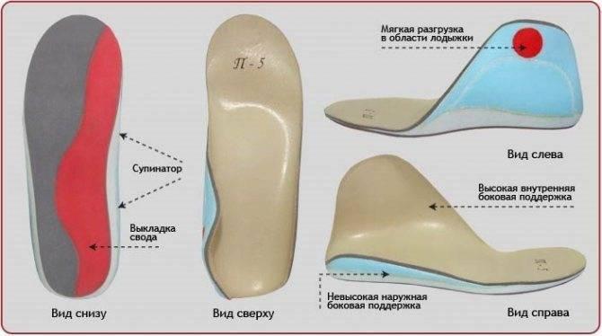 Причины и признаки варусной деформации стопы у детей