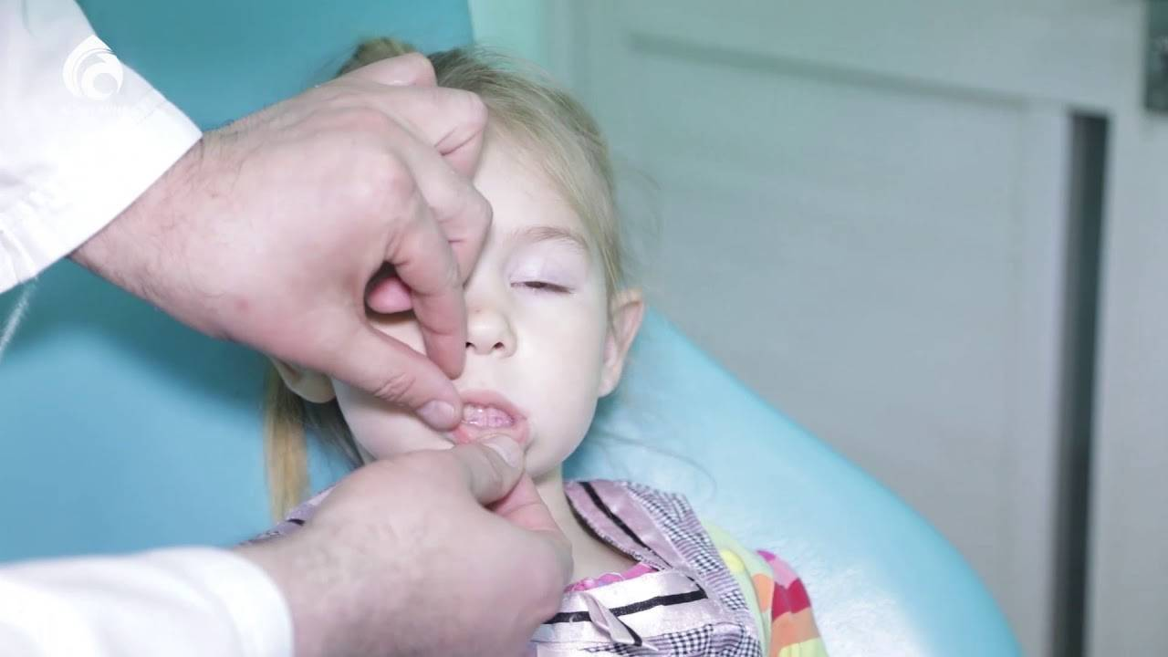 Гемангиомы у новорожденных: причины возникновения, лечение, последствия