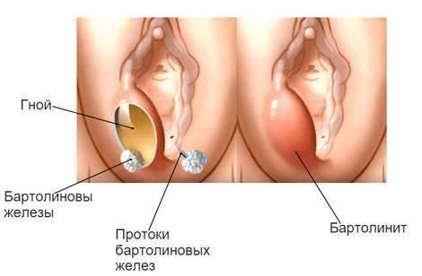 Половые губы при беременности