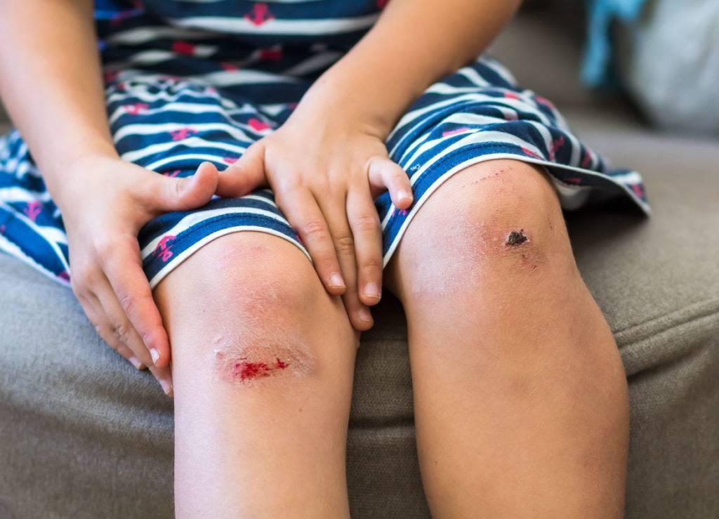 Лечение мокнущей раны у ребенка: чем обработать и как лечить рану на ягодице, ноге