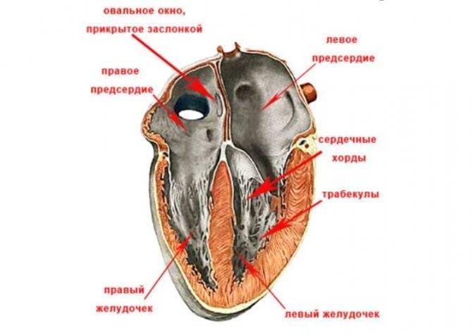 Причины и признаки дополнительной хорды в полости сердца