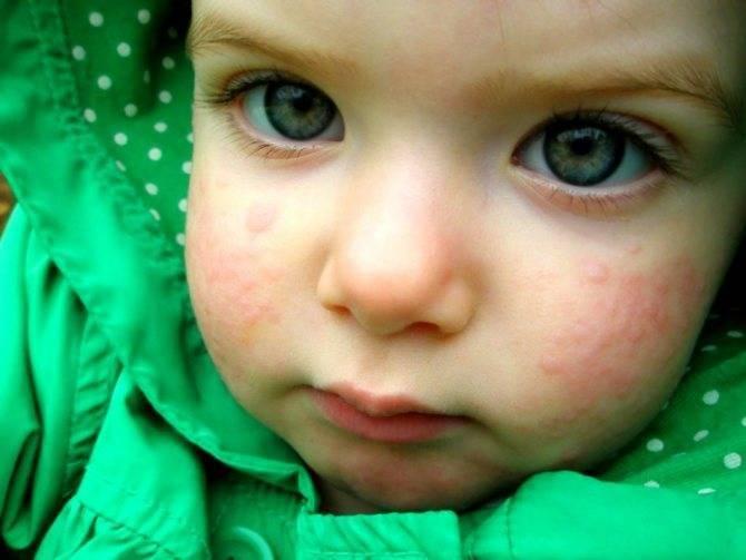 Аллергия на кошек. 9 признаков аллергии у ребенка на кота