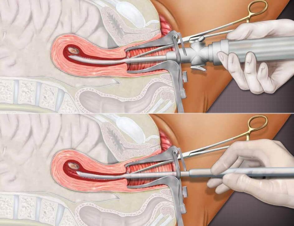 Что нельзя делать после установки внутриматочной спирали?