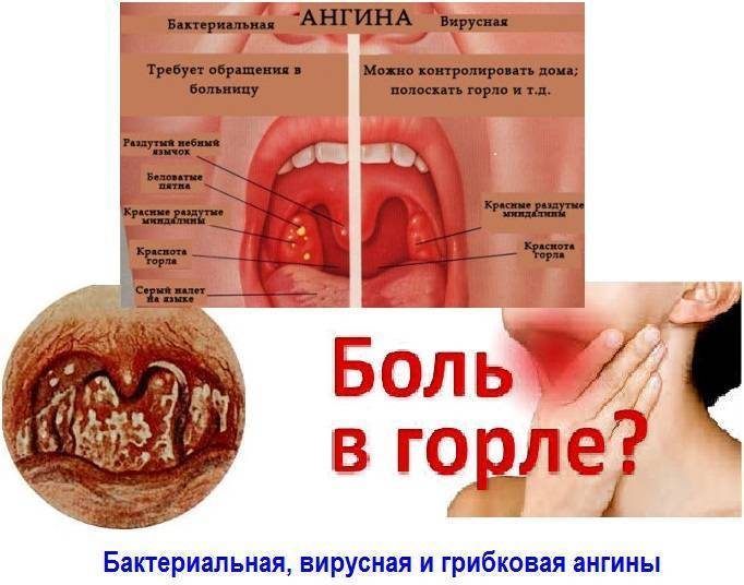Как определить грибковую ангину и чем вылечить?
