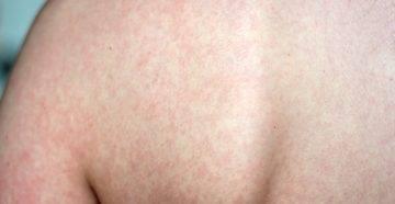Высыпание у грудничка: фото с пояснениями