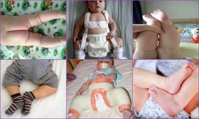 Дисплазия тазобедренного сустава у новорожденных: симптомы, лечение, причины