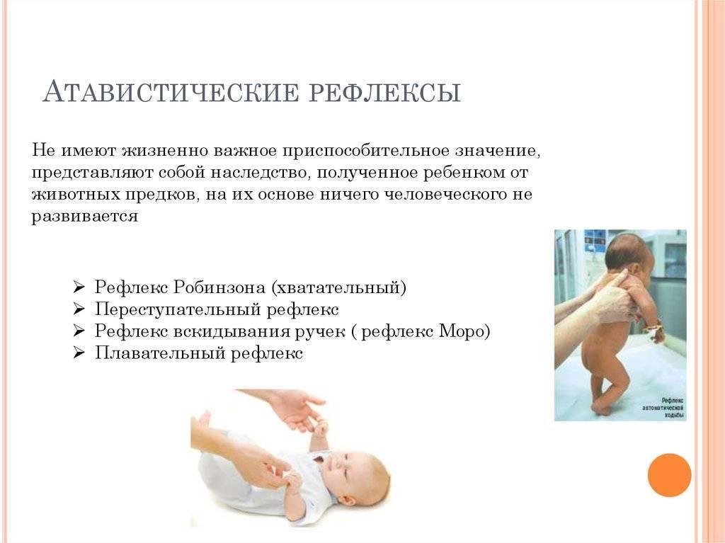 Рефлекс моро у новорожденных: синдром у грудничка, суть эффекта у младенцев