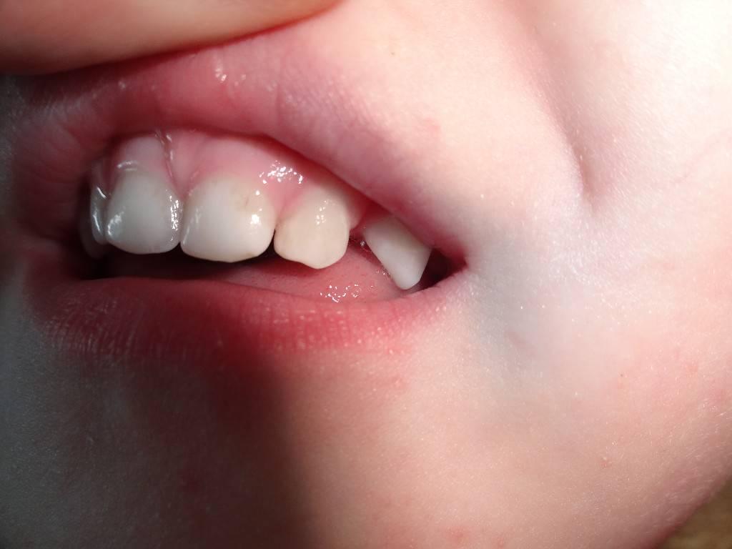 Флюс у ребенка: причины, симптомы, способы лечения, советы врачей