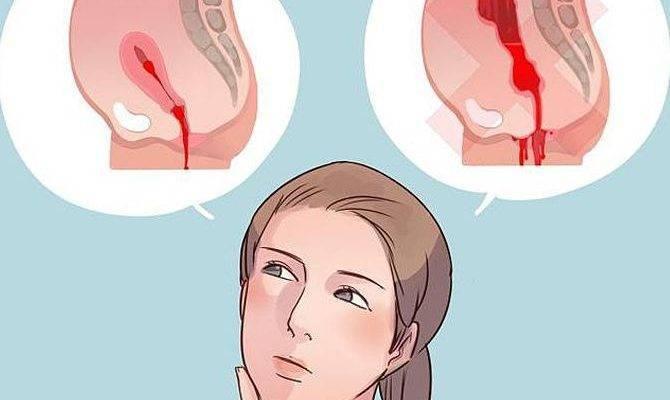 Как выходят сгустки после родов. Почему после родов в матке остаются кровяные сгустки, когда они выходят, как от них избавиться