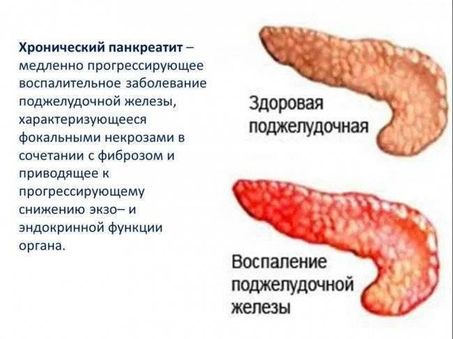 Панкреатит у детей - причины возникновения острого и хронического, симптомы, лечение и профилактика