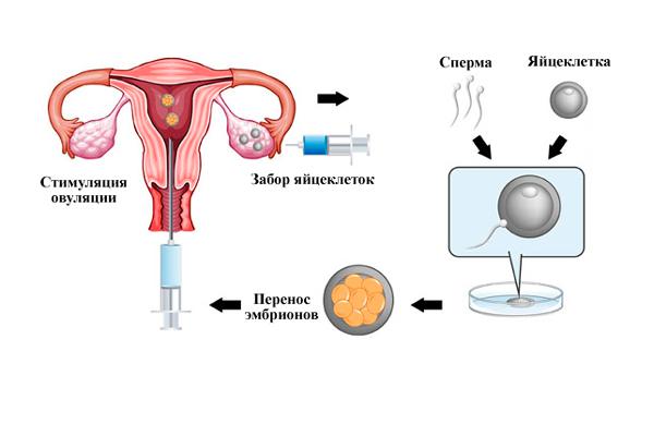 Стимуляция овуляции – стимуляция яичников для планирования беременности, отзывы тех кто забеременел, препараты в таблетках и уколах, народные средства в домашних условиях