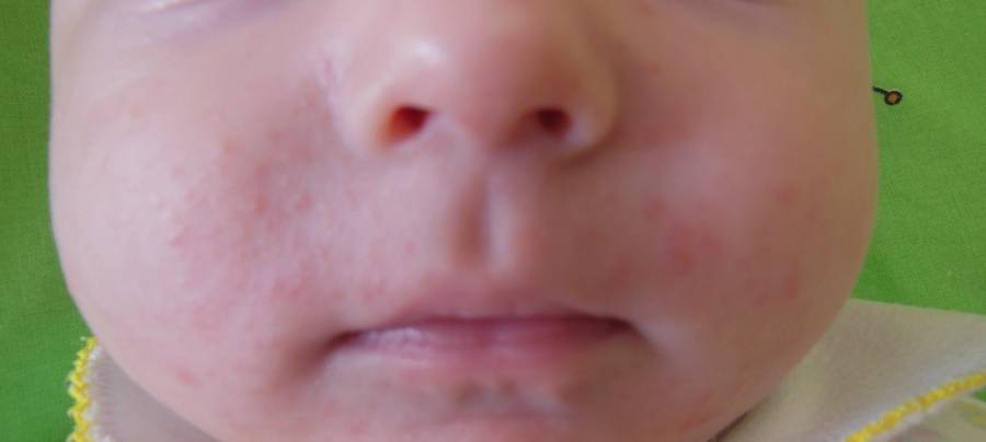 Сыпь вокруг рта у ребенка, раздражение (22 фото): причины высыпаний возле рта, сыпь при ротовирусе