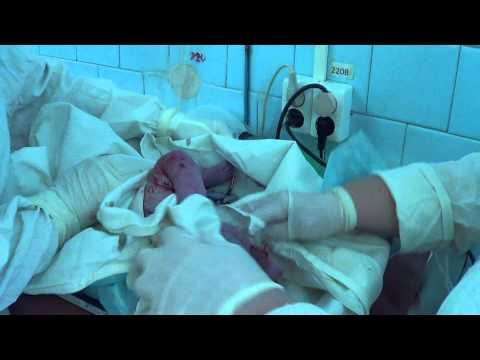 Как завязать пуповину новорожденному