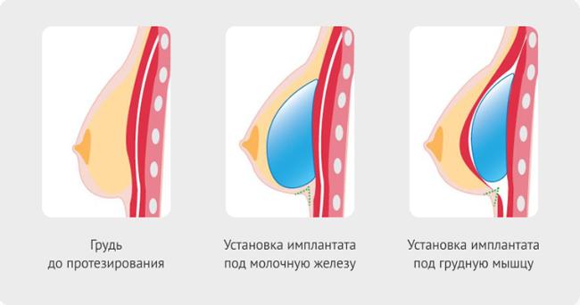 Как подтянуть грудь после кормления ребенка. особенности восстановления груди после кормления. как сделать грудь упругой народными средствами