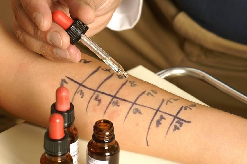 Аллергопробы для детей - методы диагностики, особенности, как делают