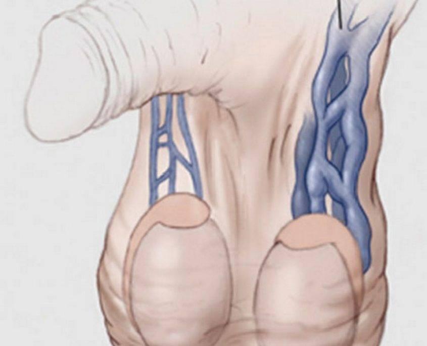 Варикоцеле, причины, симптомы, отзывы о лечении. операция при варикоцеле.