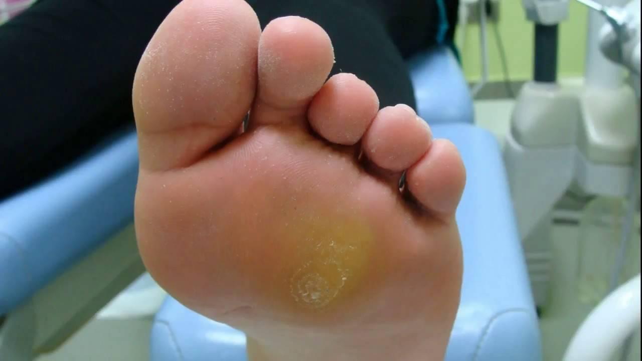 Мозоль у ребенка на ноге, как лечить натоптыши ступни пальцы виды образований домашнее лечение медикаментозные средства механическое удаление