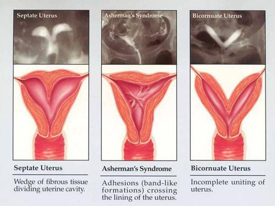 Причины синехий половых губ у девочек