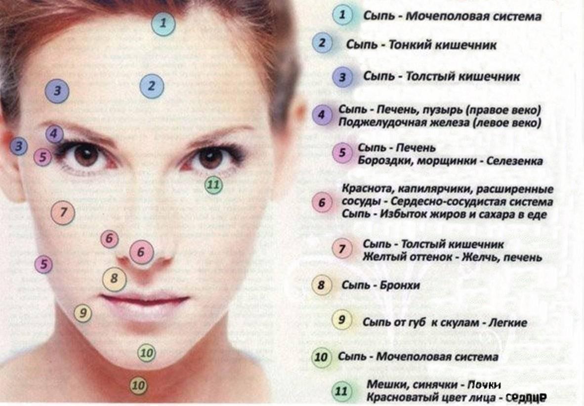 Мелкие прыщики на лице: причины появления и способы устранения