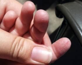 У ребенка облазит кожа на пальцах рук: советы родителям