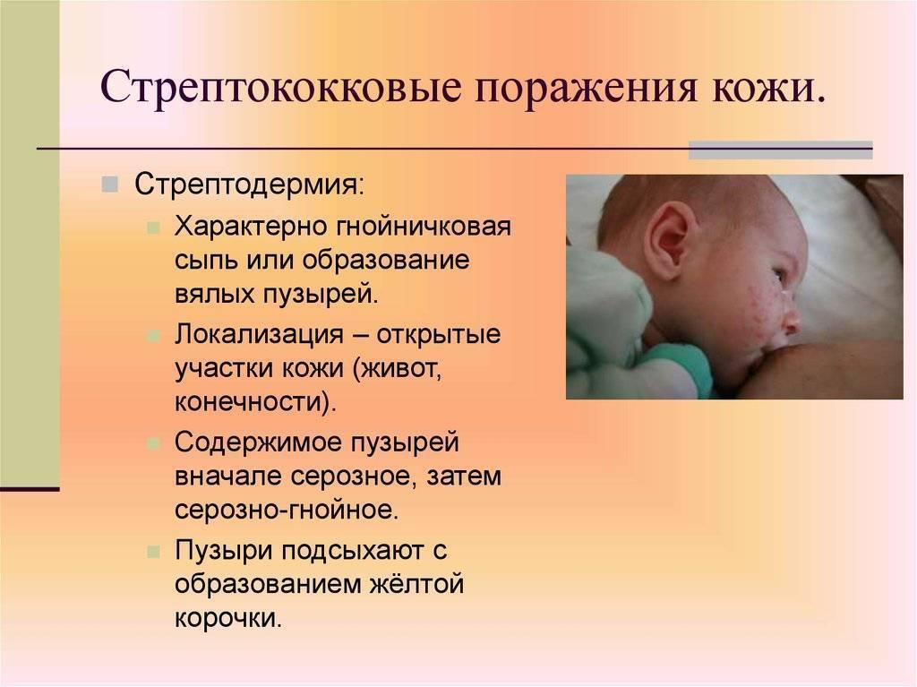 Заболевания кожи у детей инфекционные - рукапомощи