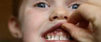 Что делать и как лечить шишку на десне над молочным зубом фото гнойника и нарыва у ребенка