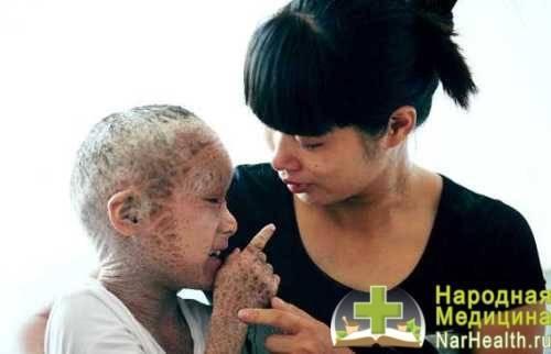 Ихтиоз кожи у новорожденных детей: опасно ли это заболевание, что делать и как лечить малыша? - детки мои