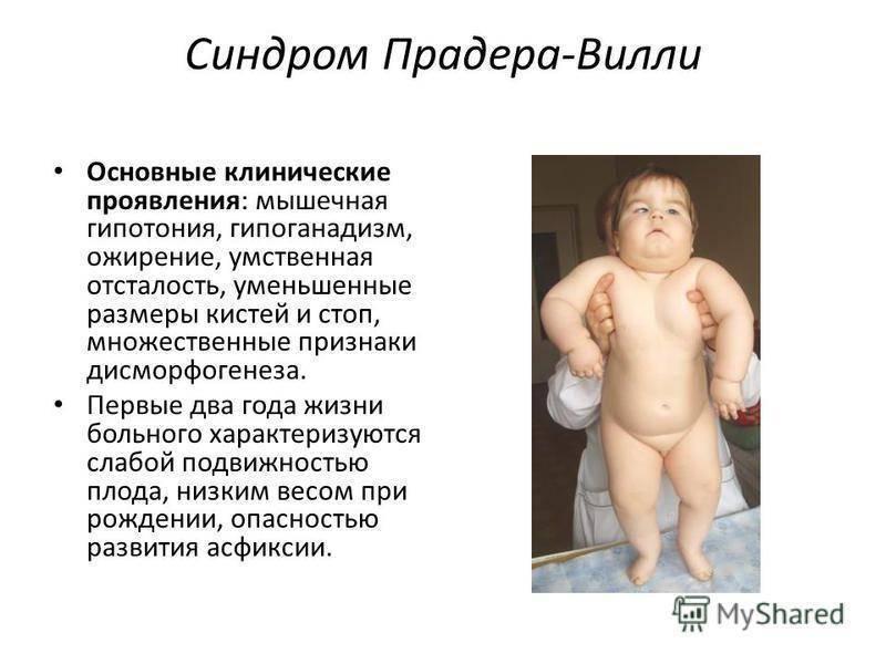 Гипоплазия яичек у мужчин и мальчиков: мкб-10, лечение правого, левого, обоих, народные средства, причины