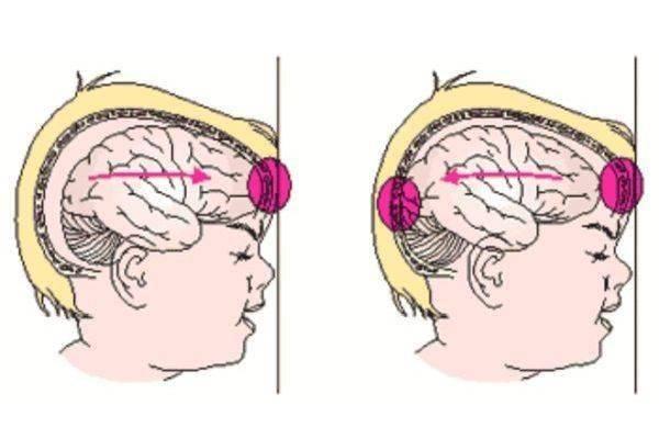 Черепно-мозговые травмы, сотрясение, ушиб мозга у детей: симптомы, лечение и последствия