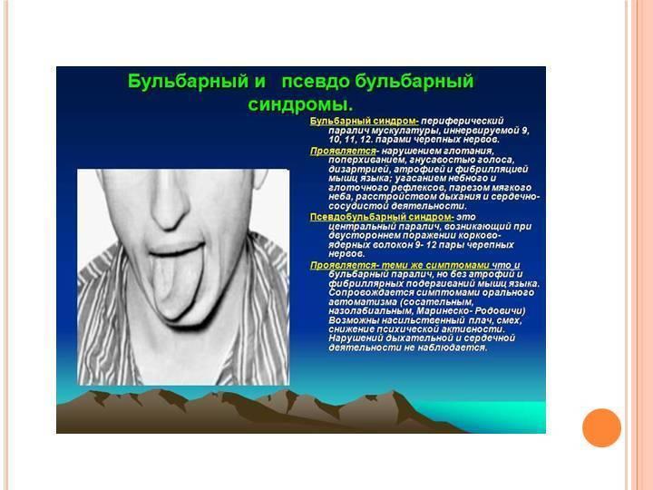 Дизартрия у детей: что это такое, лечение. симптомы псевдобульбарной и других форм. особенности дизартрии с нормальным психофизическим развитием