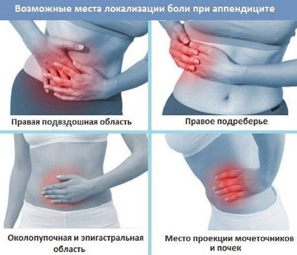 Аппендицит у беременных. симптомы на поздних, ранних сроках. операция, последствия