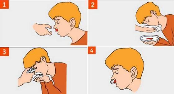 У ребенка болит ухо. что делать?