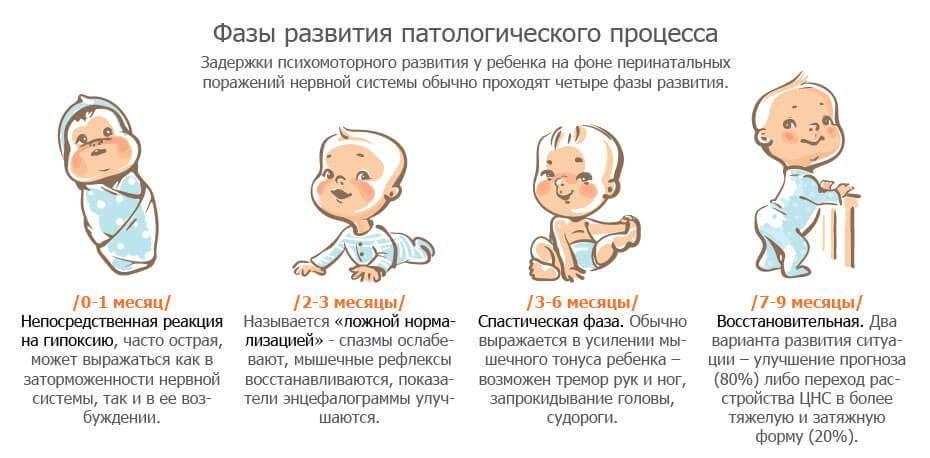 Ппцнс у новорожденного – что это за диагноз, каковы симптомы заболевания у детей, есть ли лечение?