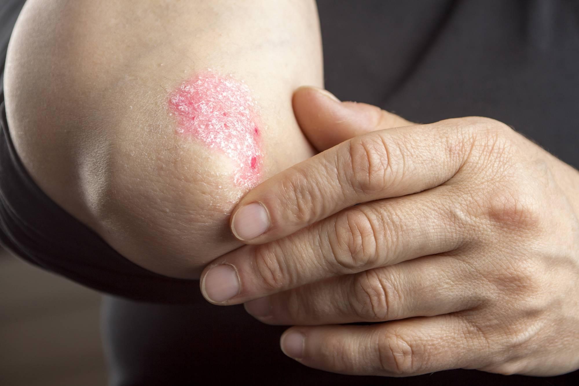 Каплевидный псориаз: 9 фото, причины возникновения, симптомы и лечение