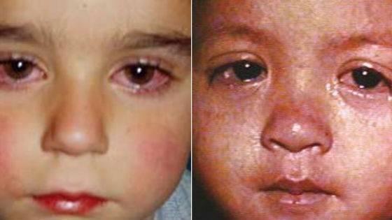 Инфекционная эритема чамера у детей и взрослых: фото, симптомы и лечение