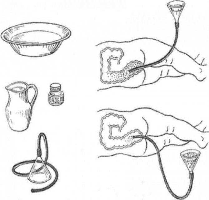 Как сделать клизму грудничку в домашних условиях - всё о грудничках