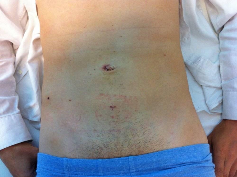 Лечение грыжи у младенцев: хирург или знахарка?