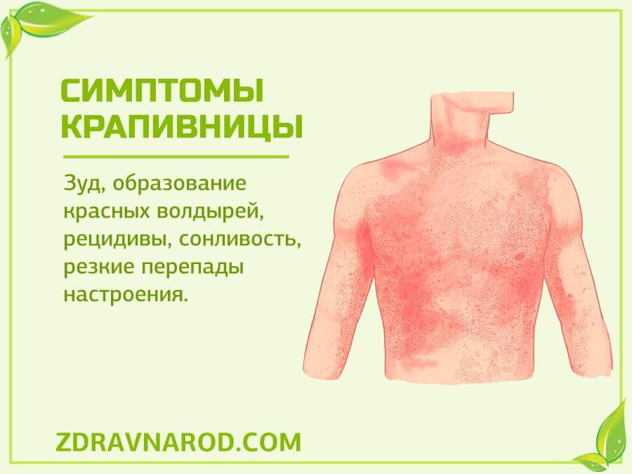 Причины и симптомы аллергической сыпи у детей