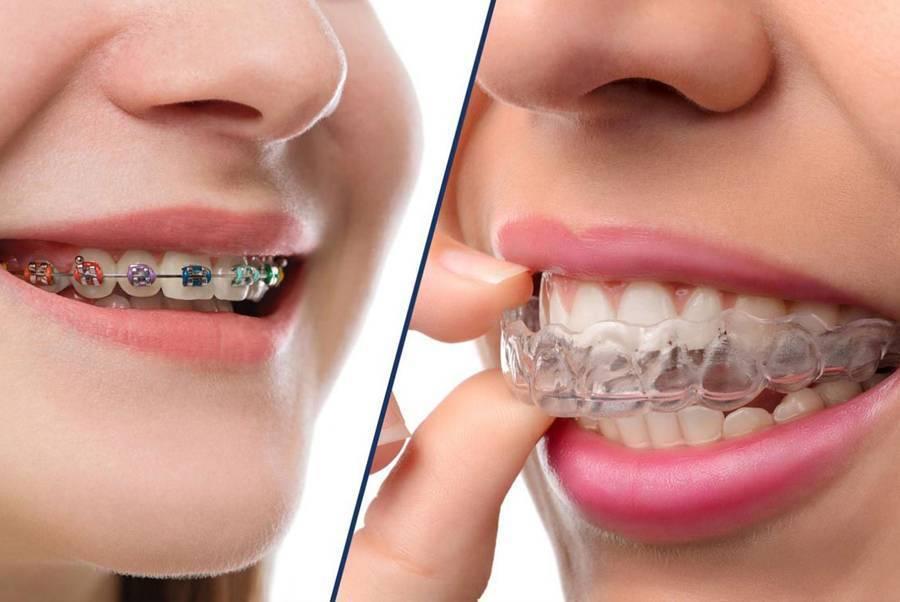 Пластины для выравнивания зубов у детей: цена в в 2020 году, фото до и после, отзывы
