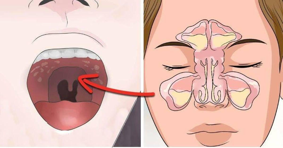 Ребенок шмыгает носом, а соплей нет: причины симптомов и лечение