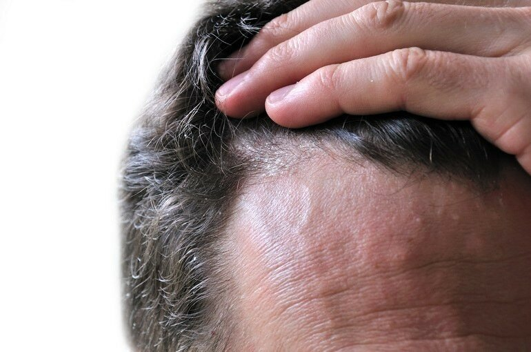 Сухая кожа головы у ребенка: что делать при очень сухой коже у грудничка в 2 месяца, если кожа чешется