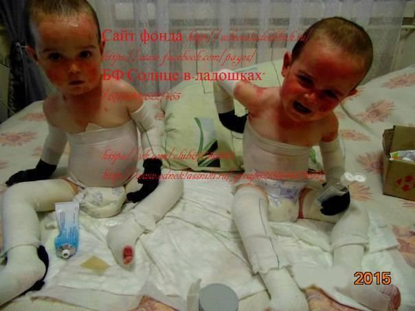 Синдром бабочки (буллезный эпидермолиз): причины, признаки, как лечить, прогноз
