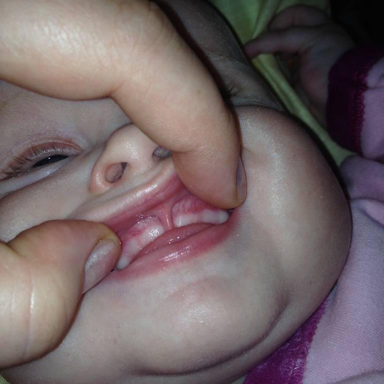 Могут ли быть сопли во время прорезывании зубов: особенности; зубного; насморка у детей до года и способы лечения