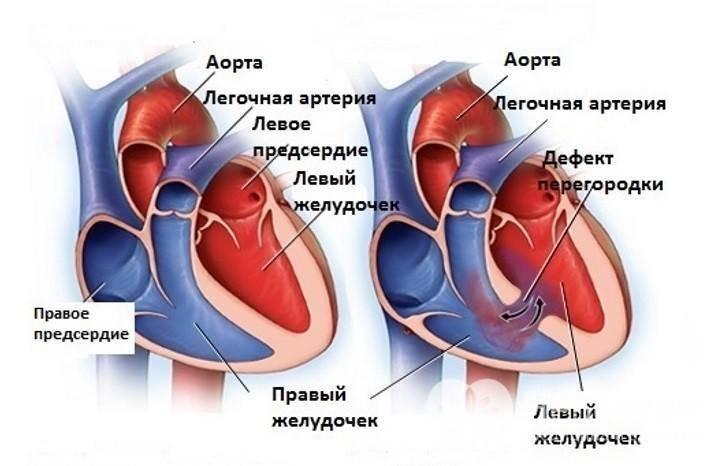 Дефект межпредсердной перегородки открытое овальное окно — заболевания сердца