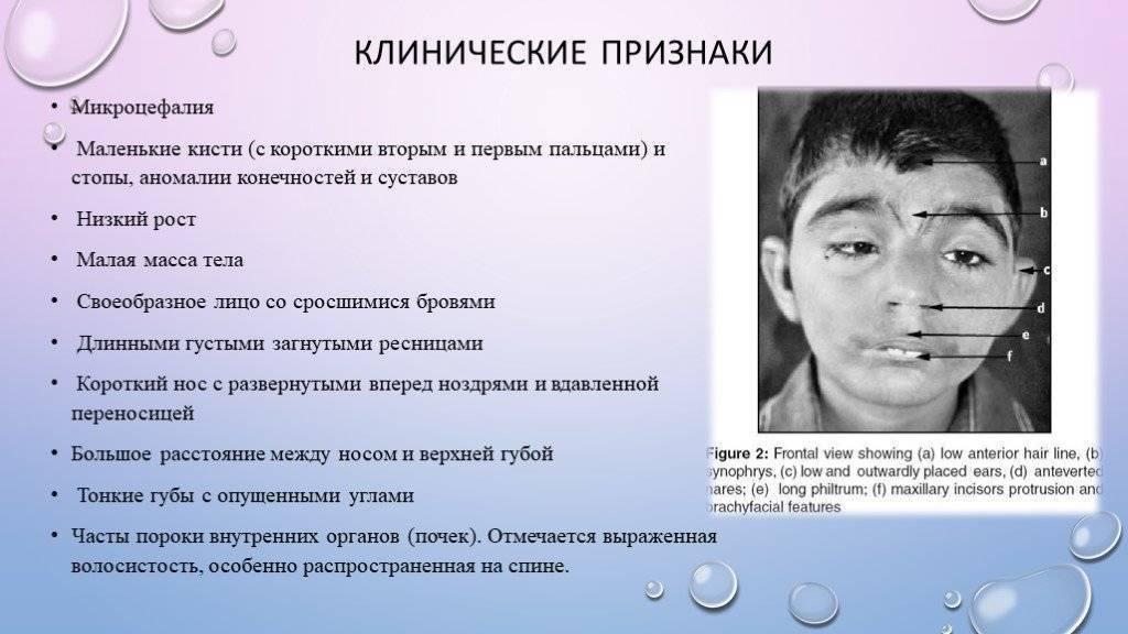 Умственная отсталость у детей: причины, лечение, симптомы, степени