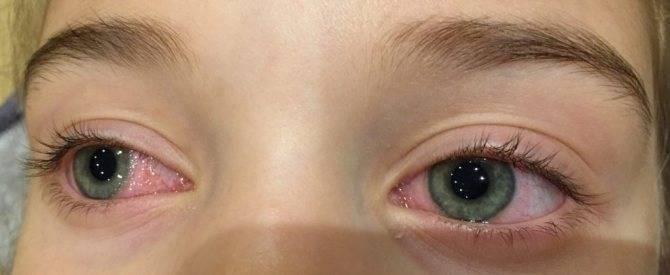 Народные средства от коньюктивита у детей - лечение детского конъюнктивита