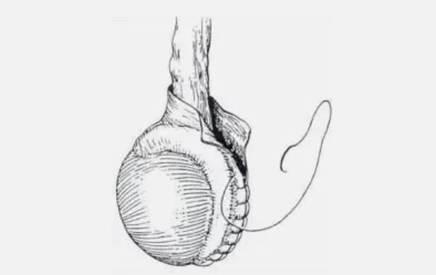 Водянка яичка у ребенка (29 фото): причины у новорожденных мальчиков, операции у грудничков
