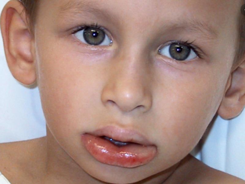 Что делать, если у ребенка или взрослого без причины опухла верхняя или нижняя губа, чем лечить отек?