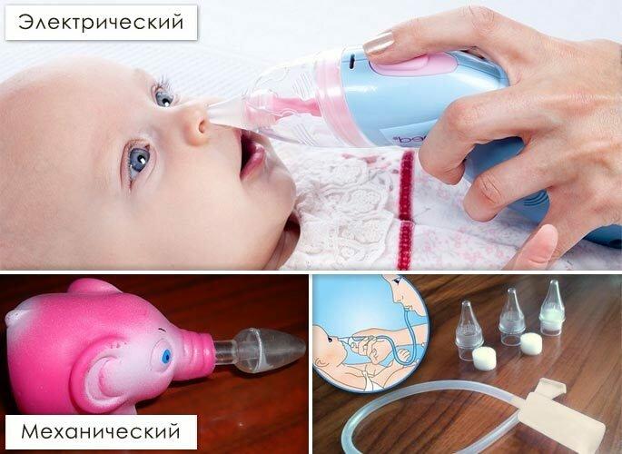 Симптомы заложенного носа у новорожденных детей: причины хрюкания, сопения,храпа